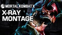 Bone Crunching X-Rays - Mortal Kombat X