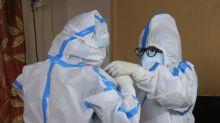Brasil passa de 3,6 milhões de casos de Covid-19 e soma 114.744 mortes