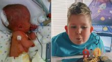 Boy born with 2% of his brain has made a remarkable recovery