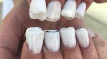 Unhas com dentes são a mais nova moda bizarra de beleza