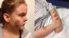 Autistic girl left 'bruised' and swollen in high school restraint