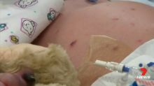 Four new cases of meningococcal reported in WA