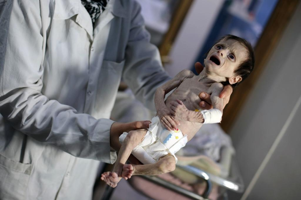 A nurse carries a Syrian infant suffering from severe malnutrition at a clinic in the rebel-controlled town of Hamouria, in the Eastern Ghouta region on the outskirts of Damascus on October 21, 2017
