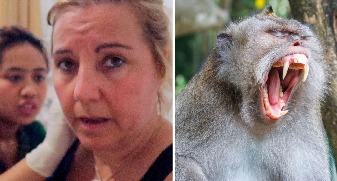 Tourist's Bali warning after brutal $8000 monkey attack