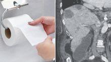 Woman's 'silver poo' shocks doctors