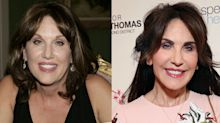 'No! I did not have any surgery': Robin McGraw reveals the cosmetic procedure that dramatically changed her look