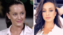 MAFS star Ines lifts the lids on her lip fillers