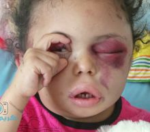 An injured Yemeni child's image went viral. Then she disappeared to Saudi Arabia.