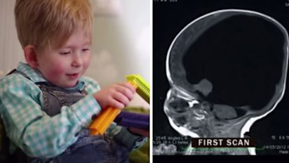 Boy born 'without brain' makes great progress