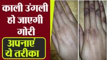 Do not be ashamed of blackness of fingers, get fair skin with these tips in 2 days