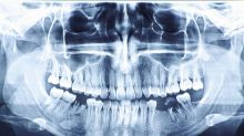 Dentists in India pull more than 500 teeth from 7-year-old boy's mouth