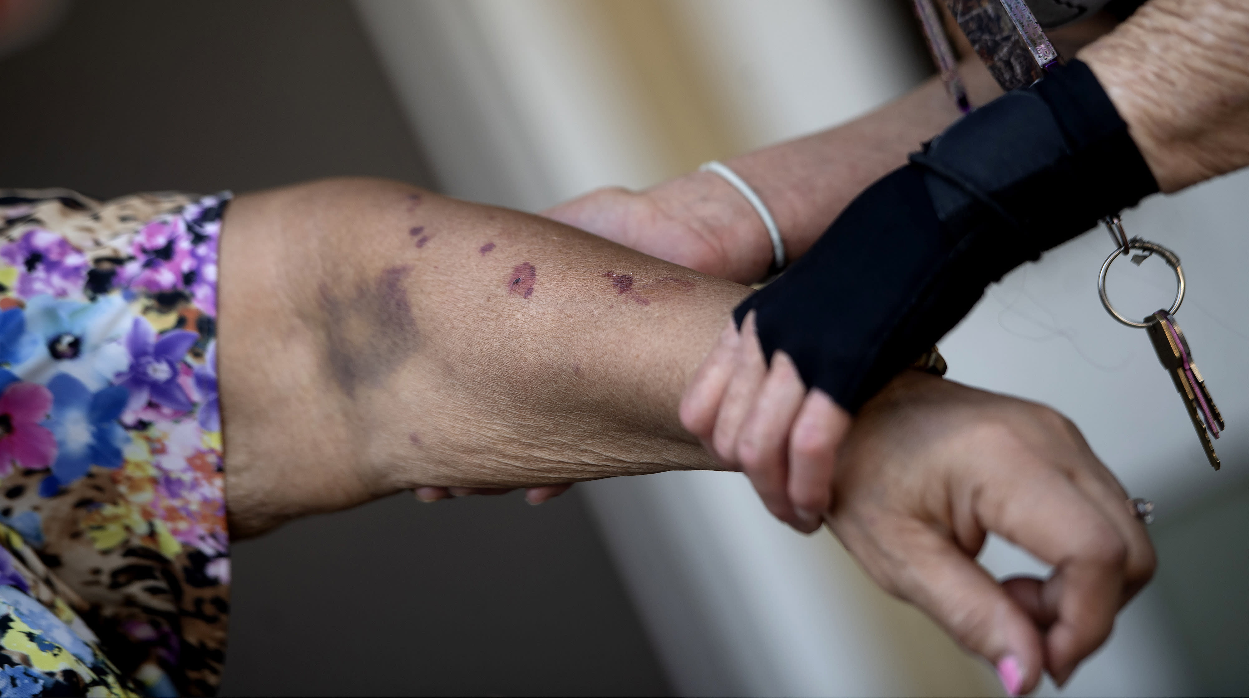 Elizabeth McCray, left, 87, recounts how her daughter's ex-boyfriend bit and bruised her arm in her Fontana, Calif., apartment home on Wednesday, Sept. 30, 2020. A friend Lorenza Marrujo came to her rescue. (Cindy Yamanaka/The Orange County Register/SCNG via AP)