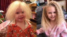 Girl with Uncombable Hair Syndrome is finally able to have her hair brushed after nine years
