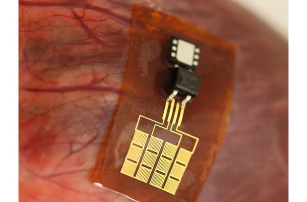 Tiny power plant can charge a pacemaker through heartbeats