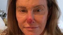 Caitlyn Jenner operada de cáncer de piel