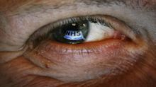 Smartphone app helps eye patients monitor vision from home