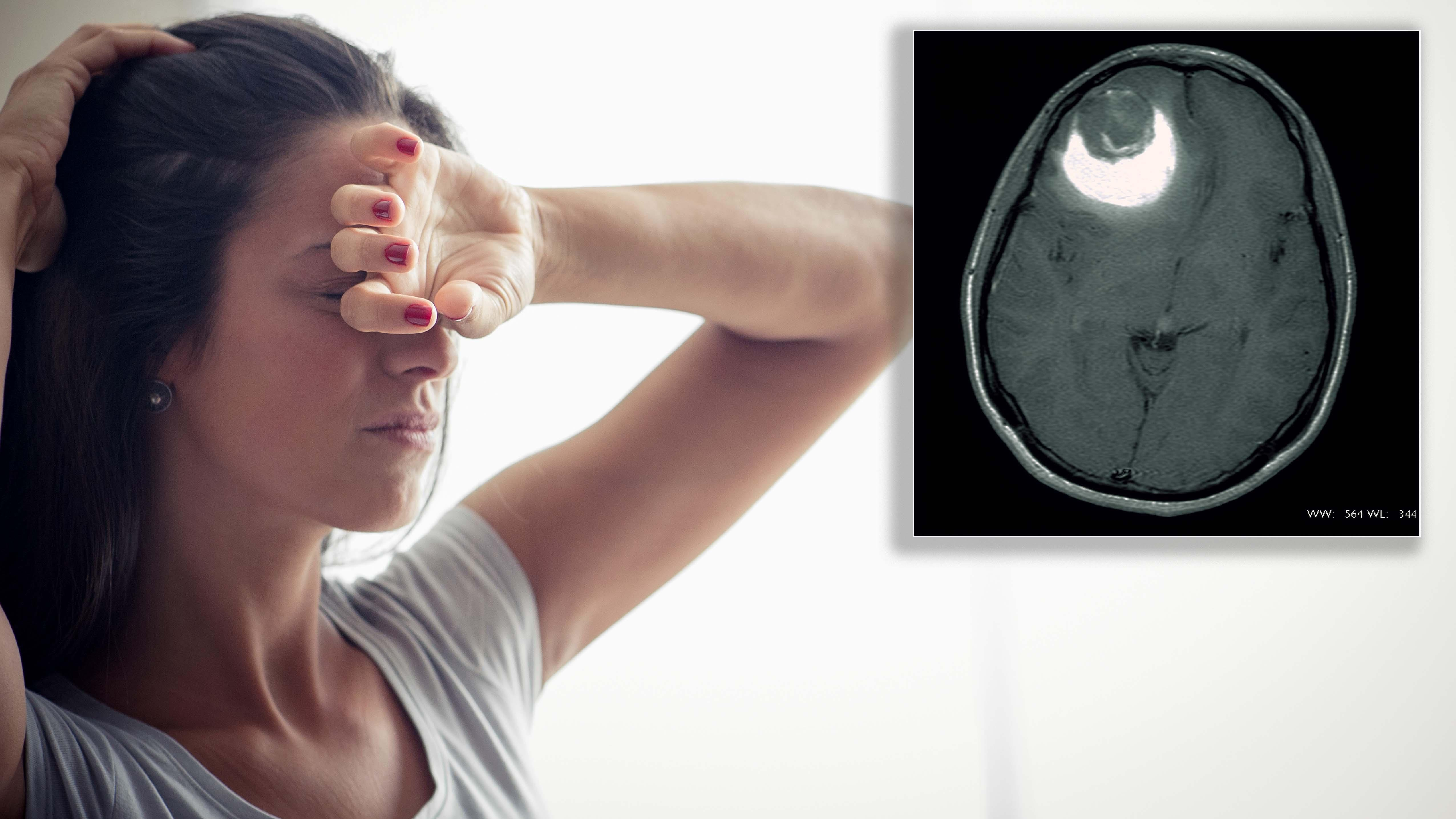Burst cyst in woman's brain misdiagnosed as migraines