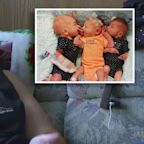 Woman who thought she had kidney stones gives birth to surprise triplets