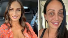 MAFS' Hayley Vernon shows off the results of her nose job