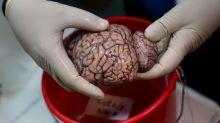 ¿Cuál es el costo cognitivo del COVID? Cerebros de algunos pacientes podrían envejecer 10 años