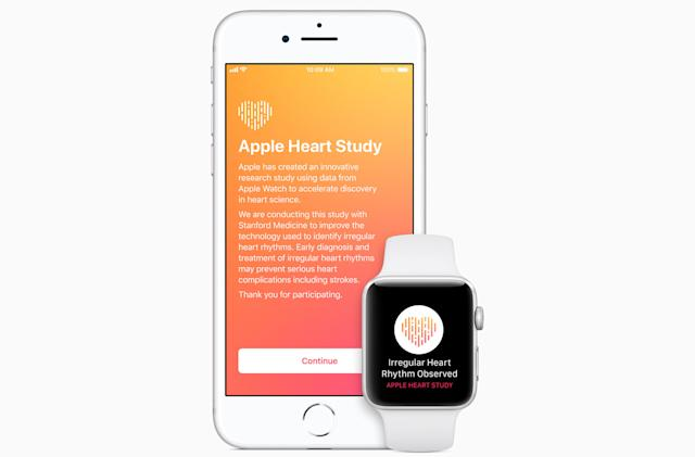 Stanford study finds Apple Watch can detect irregular heart rhythms