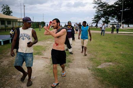 An injured refugee from the Australian-funded Manus Island detention centre is pictured in Lorengau after an alleged attack by a group of Papua New Guinean men