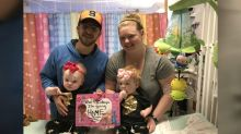 Formerly conjoined twins sent home 5 months after separation