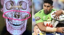 'Tried to blend KFC': NRL player opens up on horror injuries