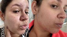 Marilia Mendonça mostra melhora na pele após reeducação alimentar
