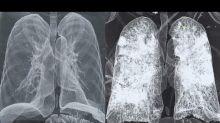 Coronavirus, Nuzzi pubblica le tac di polmoni sani e colpiti