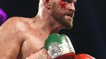 Stitch Duran reveals how Tyson Fury plans to avoid eye injury during Deontay Wilder rematch