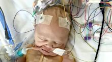 Mum shares heartbreaking pictures of baby recovering from lifesaving heart surgery at less than a day old