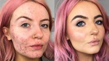 Sofre com acne? Veja como a maquiagem ajudou essa jovem a aumentar a autoestima