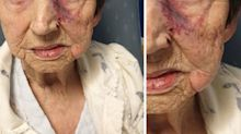 Police hunt burglars who attacked 93-year-old woman as she slept in her bed