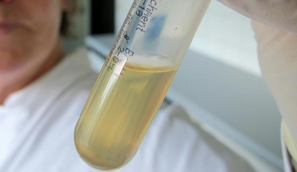 A scientist holds a diluted stool sample