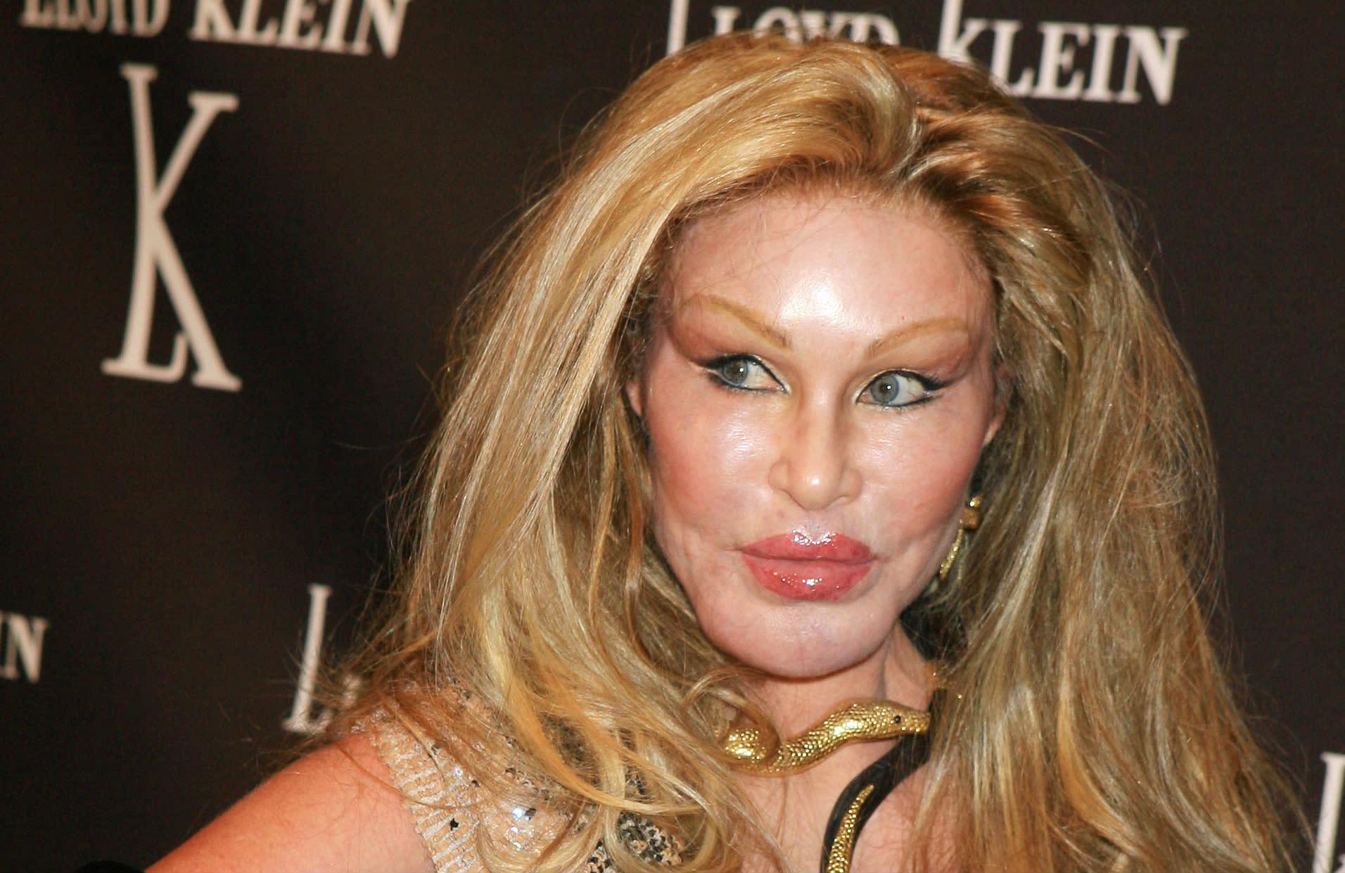 'Catwoman' Arrested For Clawing Boyfriend Lloyd Klein
