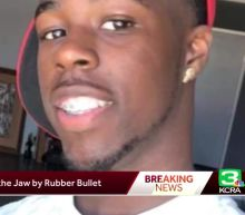 Family, sheriff speak out about protester hit in jaw by rubber bullet