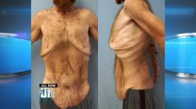 Man Who Lost over 300 Pounds Removes Excess Skin