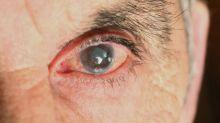 Seu olho pode revelar muitas doenças