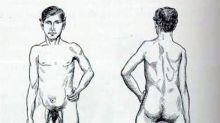 La historia de Juan Baptista dos Santos, el portugués que nació con dos penes y tres piernas