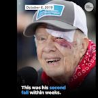 Former President Jimmy Carter hospitalized after fracturing pelvis, in 'good spirits'