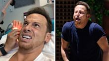 Joe Swash FINALLY has cockroach removed from his ear following 'Extra Camp' trial