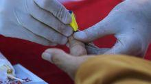 Caso de paciente de VIH en remisión genera esperanzas sobre una futura cura del sida