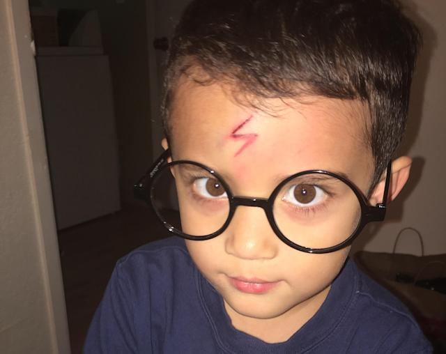 This mom magically turned her son's scar into Harry Potter's lightning bolt