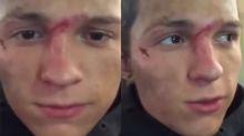 Tom Holland se rompe la nariz por tercera vez