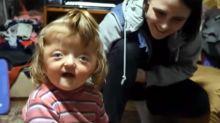 "Maestros rechazan a niña con hidrocefalia porque ""asustaría a sus compañeros"""