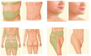 Liposuction vs Tummy Tuck: Which Is Right for Me?