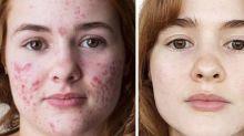 Jovem faz sucesso no Instagram com 'antes e depois' de tratamento contra a acne