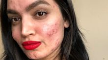 "Acne-Positive Blogger Kadeeja Khan Calls Out L'Oréal After Being Dropped From a Campaign Due to ""Skin Issues"""
