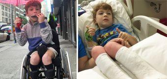 Boy's inspiring journey to walk on his own feet